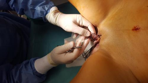 Cirugia Estetica1