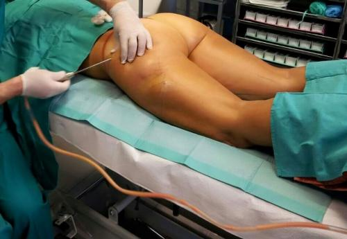 Cirugia Estetica20