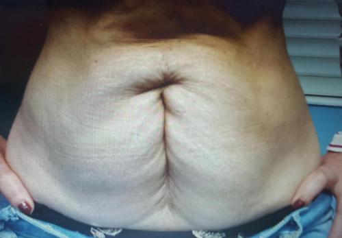 Cirugia Estetica23