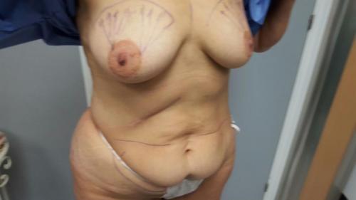 Cirugia Estetica25