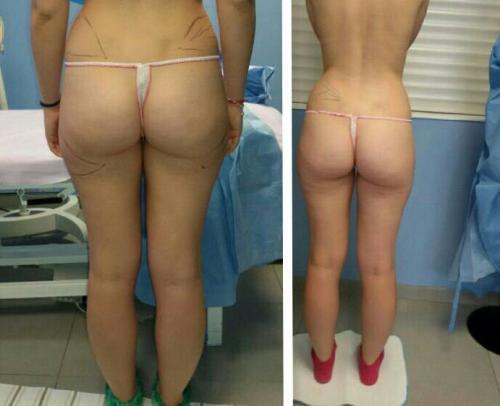 Cirugia Estetica29