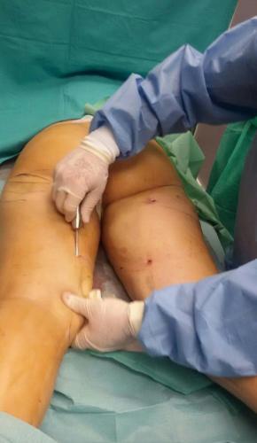Cirugia Estetica3
