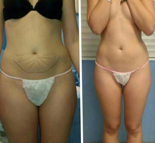 Cirugia Estetica30