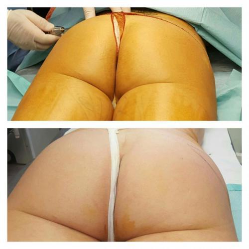 Cirugia Estetica33