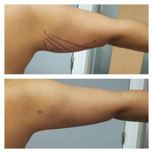Cirugia Estetica34