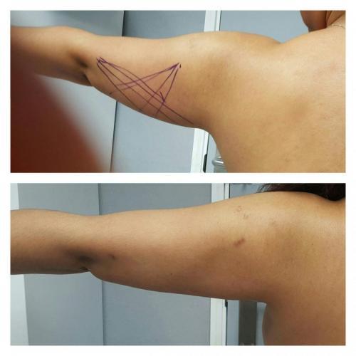 Cirugia Estetica35