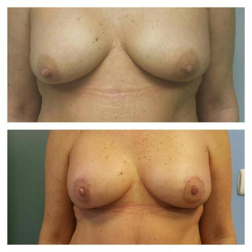 Cirugia Estetica36