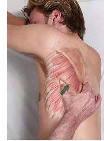 Fisioterapia y Rehabilitacion18