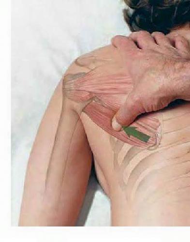Fisioterapia y Rehabilitacion23