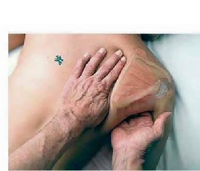 Fisioterapia y Rehabilitacion7