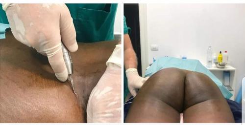 cirugia-estetica-29