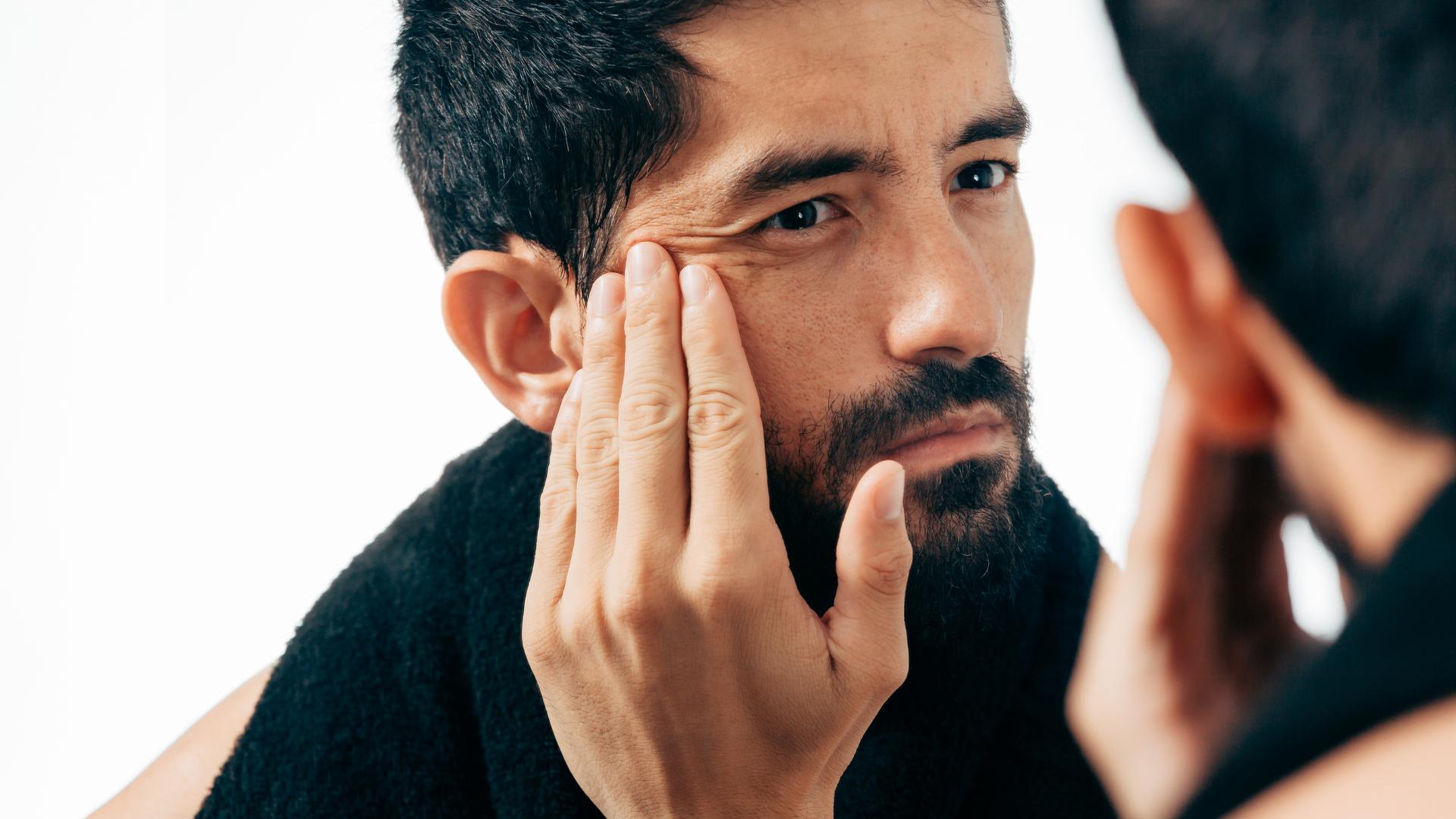 Eliminar arrugas con botox