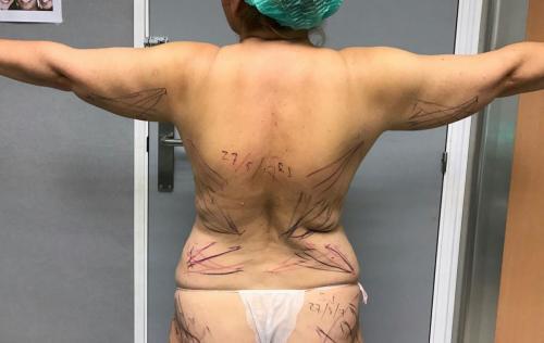 Cirugia Estetica16